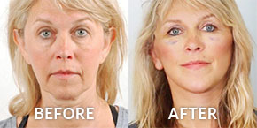 facelift surgery before after photos