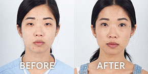eyelid surgery before after photos
