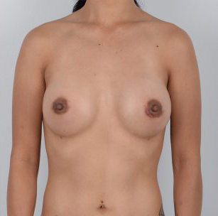Breast Augmentation Before & After Patient #3459