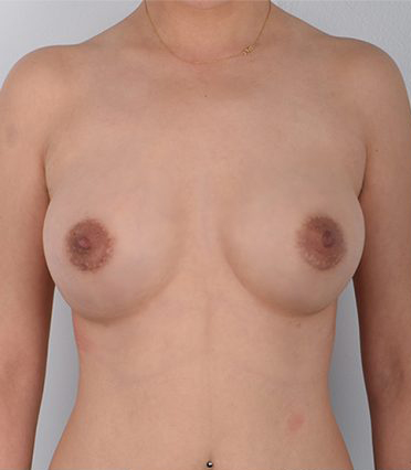 Breast Augmentation Before & After Patient #3467