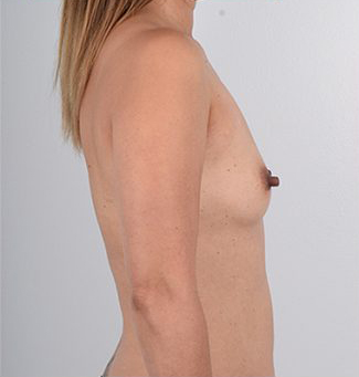 Breast Augmentation Before & After Patient #3473