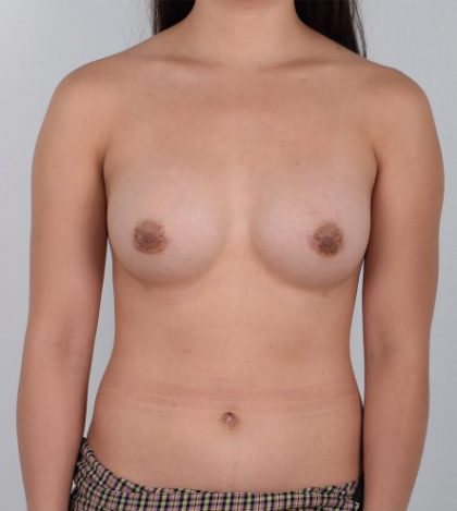 Breast Augmentation Before & After Patient #3480