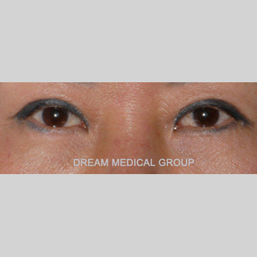 Eyelid Surgery Before & After Patient #3394