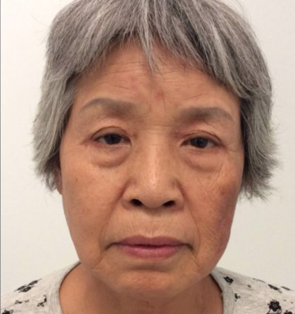 Eyelid Surgery Before & After Patient #3407