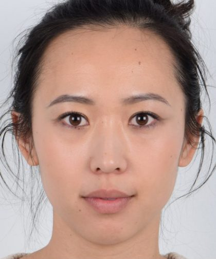 Eyelid Surgery Before & After Patient #3410