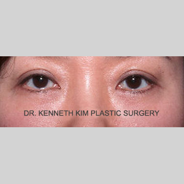 Eyelid Surgery Before & After Patient #3413