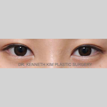 Eyelid Surgery Before & After Patient #3416