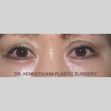 Eyelid Surgery Before & After Patient #3419