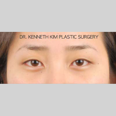 Eyelid Surgery Before & After Patient #3432