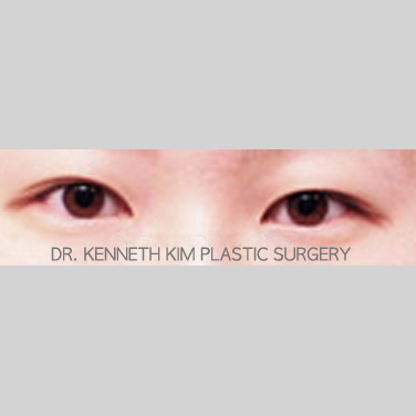 Eyelid Surgery Before & After Patient #3435