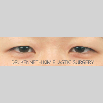 Eyelid Surgery Before & After Patient #3441