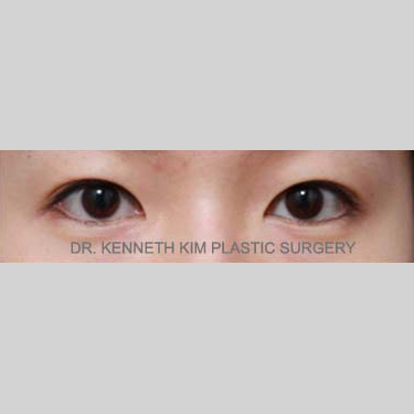 Eyelid Surgery Before & After Patient #3447