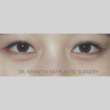 Eyelid Surgery Before & After Patient #3451