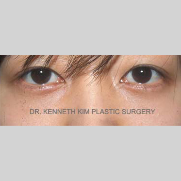 Eyelid Surgery Before & After Patient #3456