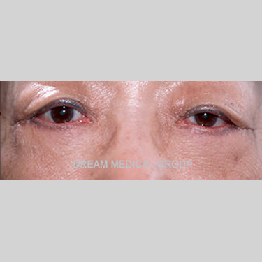 Eyelid Surgery Before & After Patient #3357