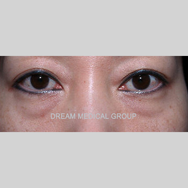 Eyelid Surgery Before & After Patient #3360