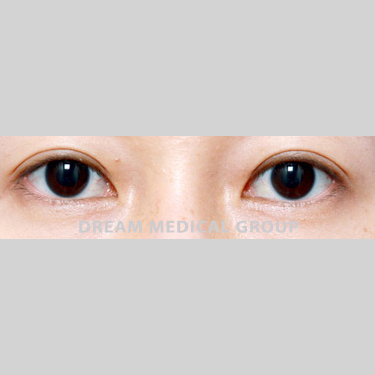 Eyelid Surgery Before & After Patient #3374
