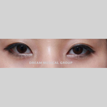 Eyelid Surgery Before & After Patient #3380