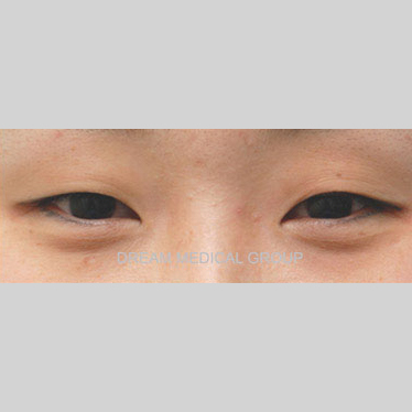 Eyelid Surgery Before & After Patient #3383