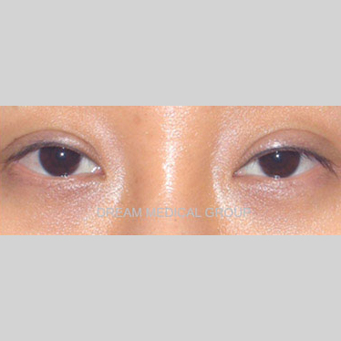 Eyelid Surgery Before & After Patient #3386