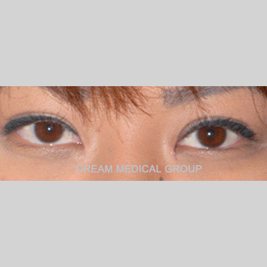 Eyelid Surgery Before & After Patient #3391