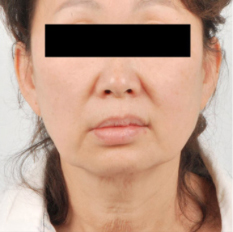 Facelift Before & After Patient #3498