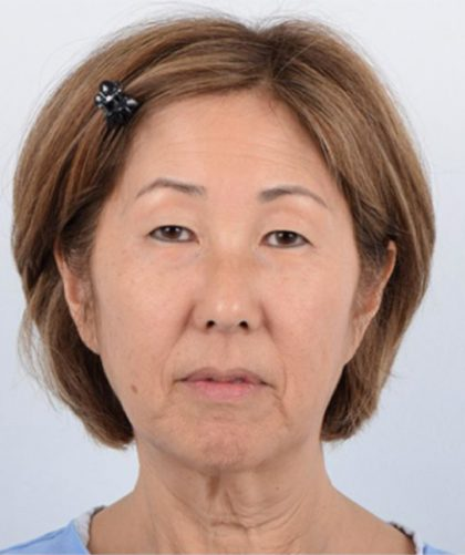 Facelift Before & After Patient #3505