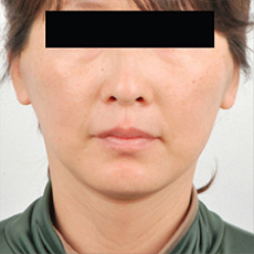 Facelift Before & After Patient #3509