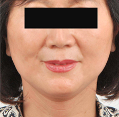 Facelift Before & After Patient #3512