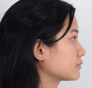 Nose Surgery Before & After Patient #3518