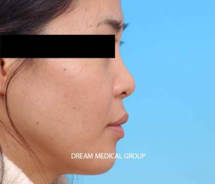 Nose Surgery Before & After Patient #3526