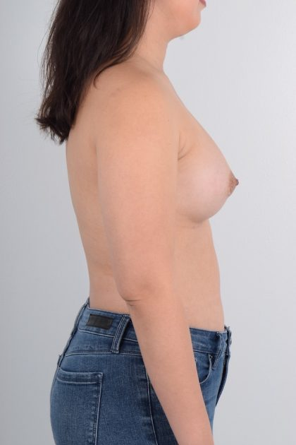 Breast Augmentation Before & After Patient #4173