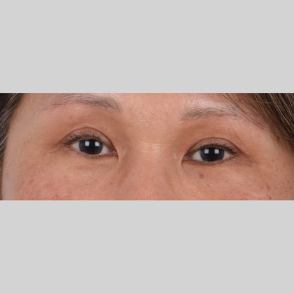 Eyelid Surgery Before & After Patient #4728