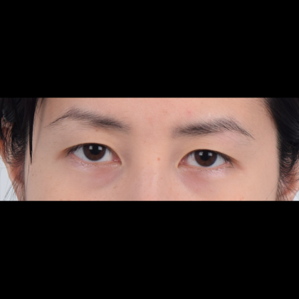 Eyelid Surgery Before & After Patient #5038
