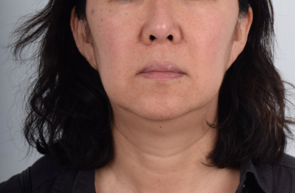 Facelift Before & After Patient #5035