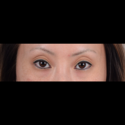 Eyelid Surgery Before & After Patient #5041