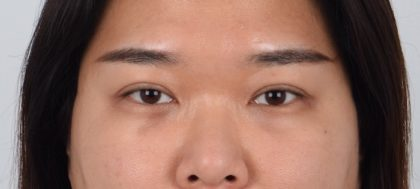 Eyelid Surgery Before & After Patient #5076