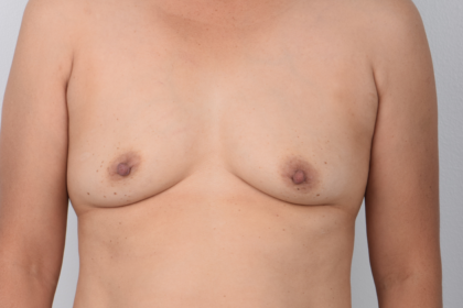 Breast Augmentation Before & After Patient #5110