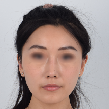 Nose Surgery Before & After Patient #5127